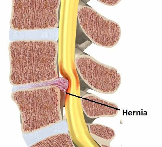 hernia discal tarragona